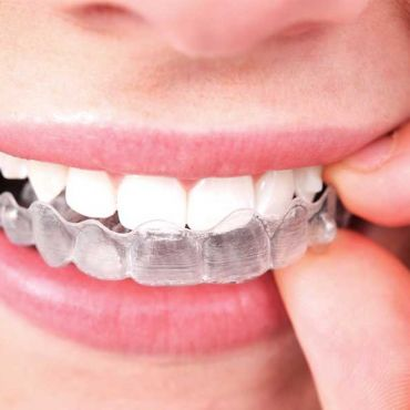 Beneficios de la Ortodoncia Invisible Invisalign